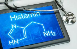 Chemische Strukturformel von Histamin